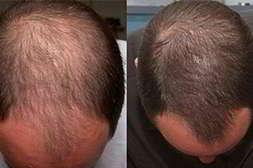 Волоксин от выпадения волос