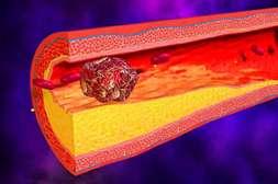 VenaHeal — эффективный противотромбозный биогель.