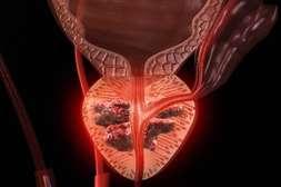 Состав BlissFort помогает в лечении простатита.