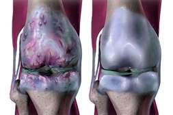 Состав Доктрин Нано восстанавливает повреждённые суставы.