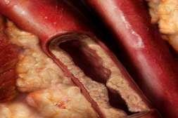 Лекарство Грифола нейтрализует ядовитые вещества.