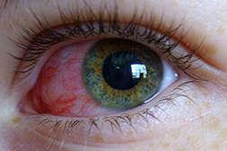 Состав Visucaps обладает противовоспалительным действием.