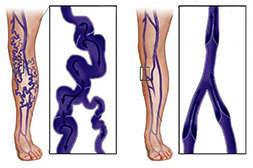 Состав Варитокса устраняет причины варикоза.